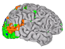 A lateral view of a human brain showing the results of an fMRI experiment in which the subject viewed moving and static figures.