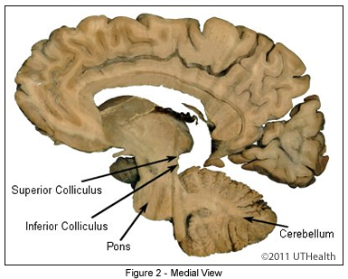 Medial View of the Myelencephalon