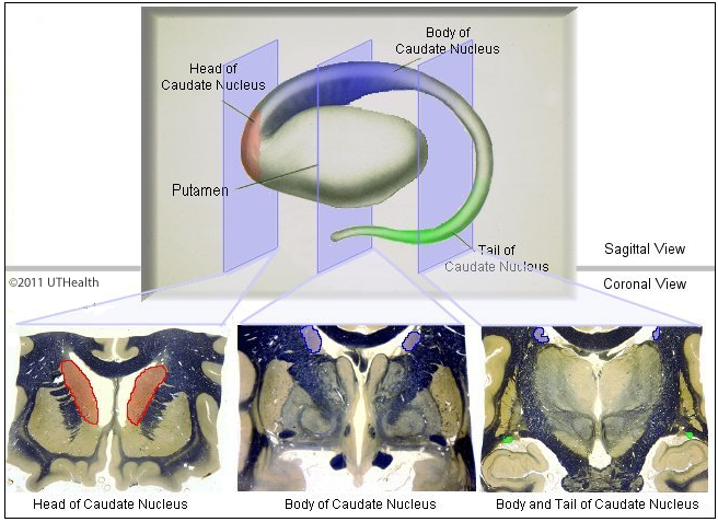 neuroanatomy online lab 2 internal organization of the brain