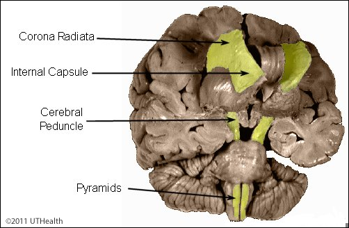 Neuroanatomy Online Lab 2 Internal Organization Of The Brain Corticospinal Fibers Overview