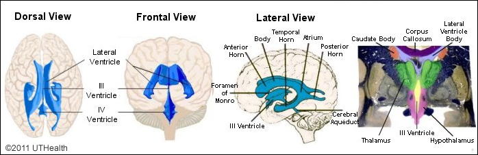neuroanatomy online: lab 3 - the ventricles and blood supply - the, Human Body
