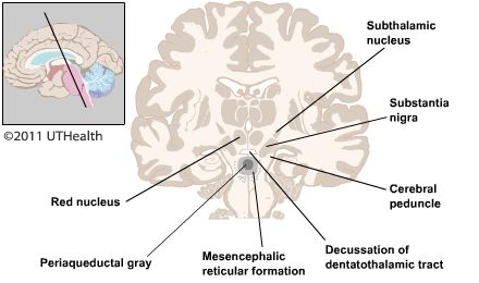 Figure 4. (Click to enlarge) Schematic drawing of subcortical diencephalic and mesencephalic structures.