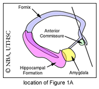 Neuroanatomy Online: Lab 11 - The Limbic System - Review