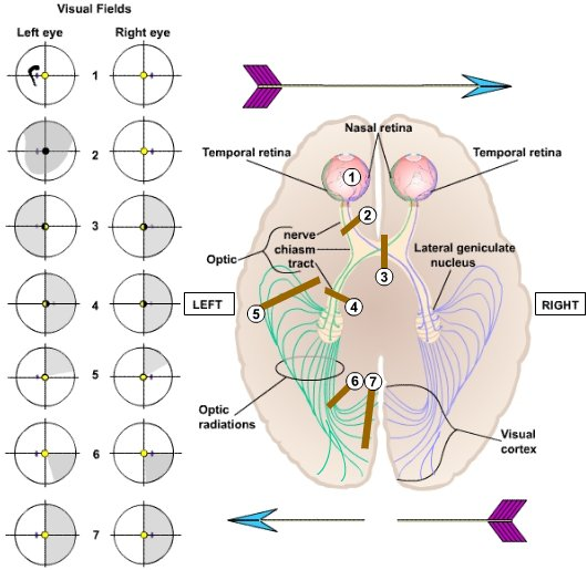 Visual Processing: Cortical Pathways (Section 2, Chapter 15 ...
