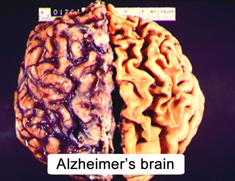 the aging brain and alzheimer ís disease essay Brain health – learn about lifestyle habits that can help keep your body and brain healthy, while potentially reducing your risk of cognitive decline get information and resources for alzheimer's and other dementias from the alzheimer's association.